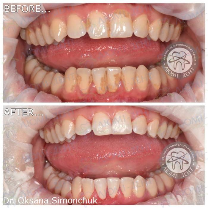 Коричневые пятна на зубах фото ЛюмиДент