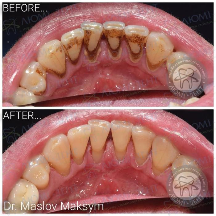 Коричневые точки на зубах фото ЛюмиДент