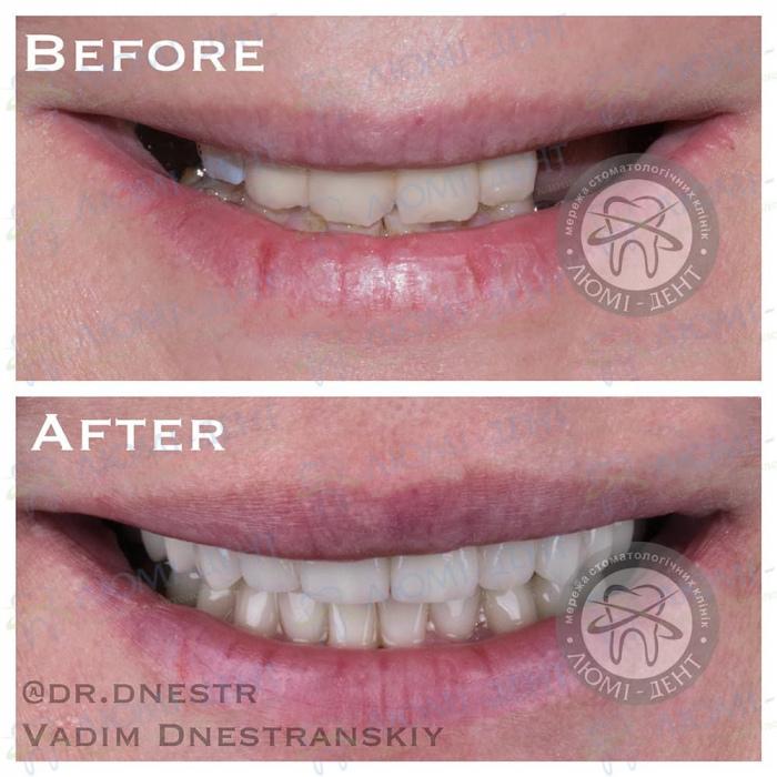 Кто такой стоматолог ортопед фото ЛюмиДент
