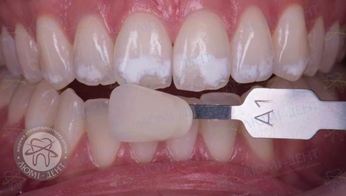 Крейдоподібні плями на зубах фото ЛюміДент