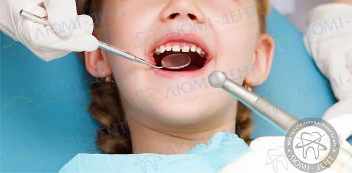 Чи варто лікувати молочні зуби фото ЛюміДент