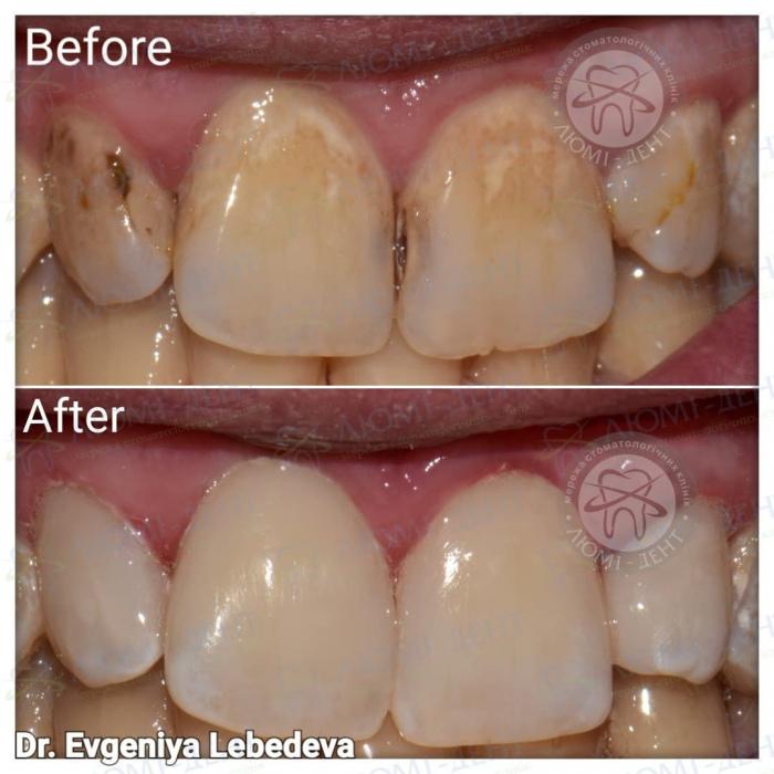пигментация зубов фото ЛюмиДент