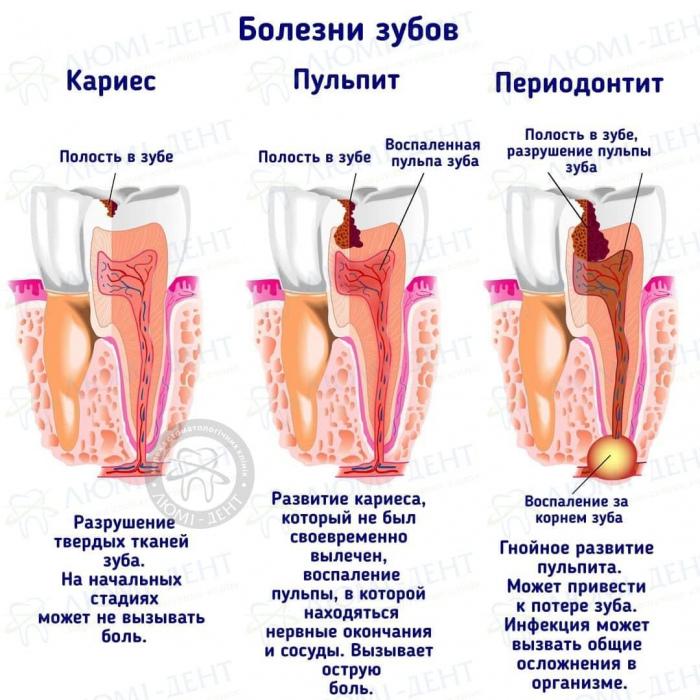 болит зуб при накусывании фото ЛюмиДент