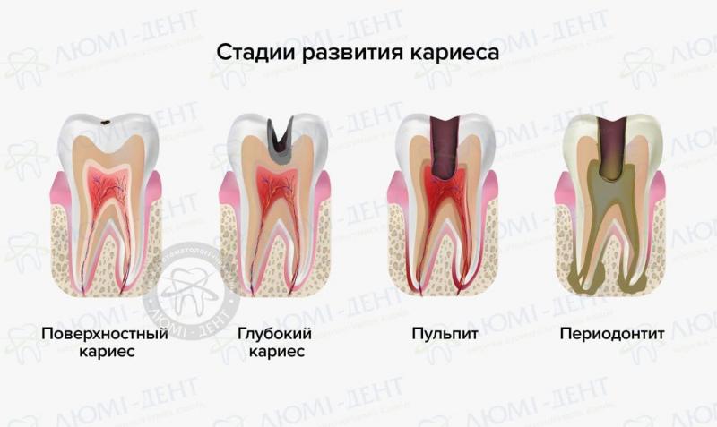 болит зуб при нажатии на него фото ЛюмиДент
