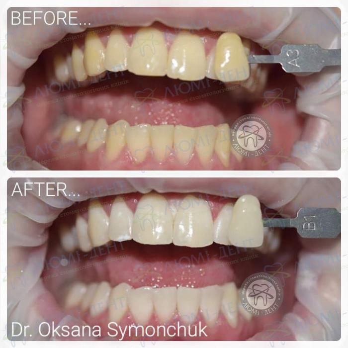 Потемнение зубов фото ЛюмиДент