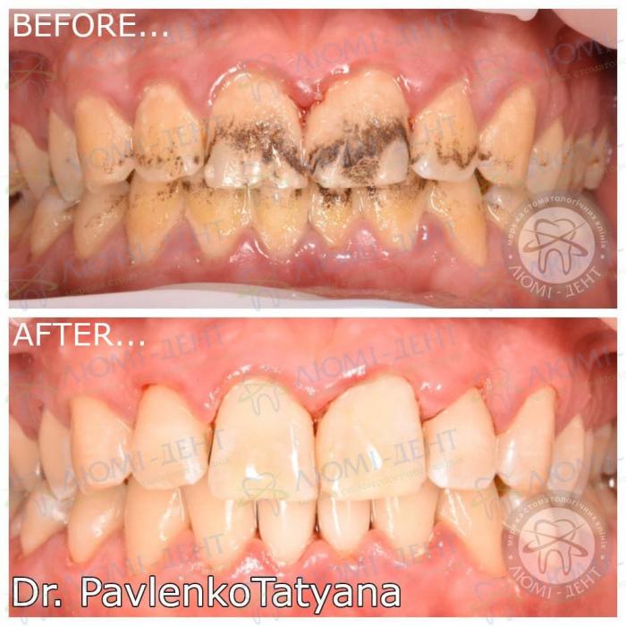 Темные зубы фото ЛюмиДент