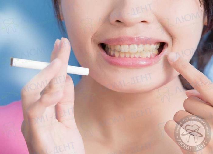 почему желтеют зубы фото ЛюмиДент