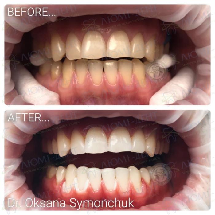 желтеют зубы фото ЛюмиДент