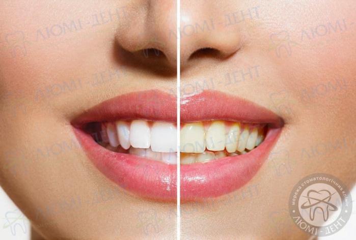 желтые зубы фото ЛюмиДент