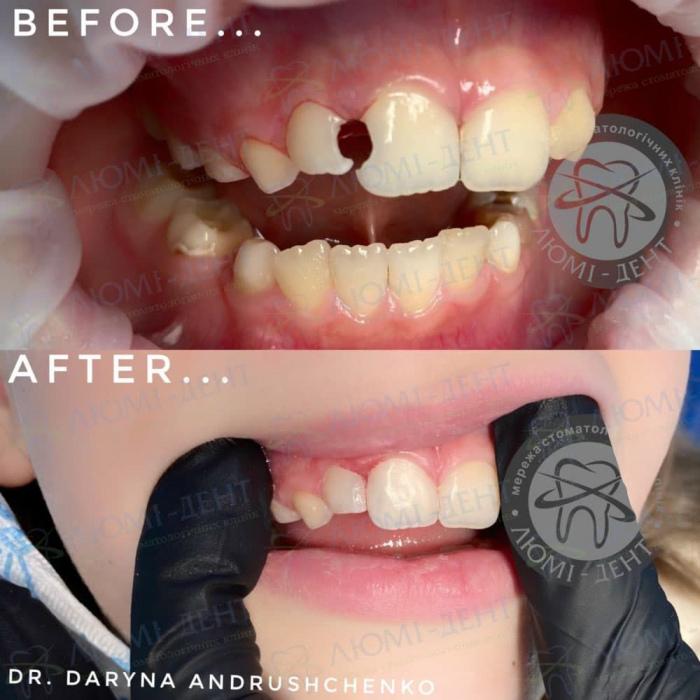 лікування і реставрація молочних зубів фото ЛюміДент