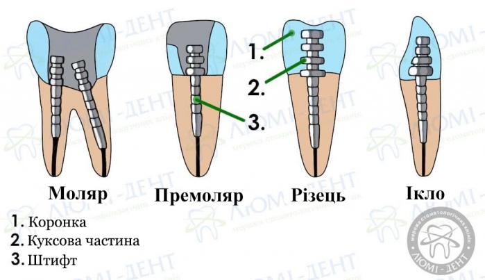 зубний штифт наслідки фото ЛюміДент