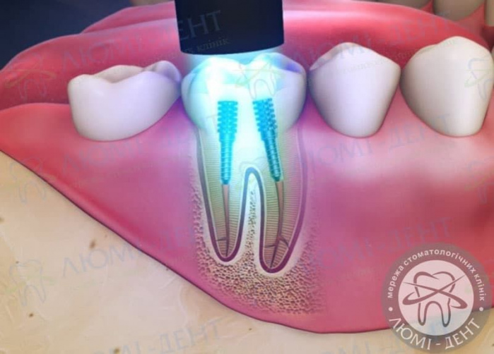 штифт зубной фото ЛюмиДент