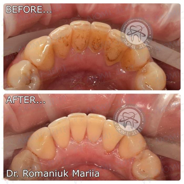 зубні відкладення фото ЛюміДент