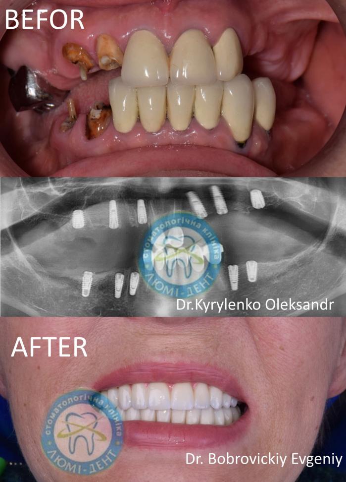 Удалить зуб Киев фото Люми-Дент