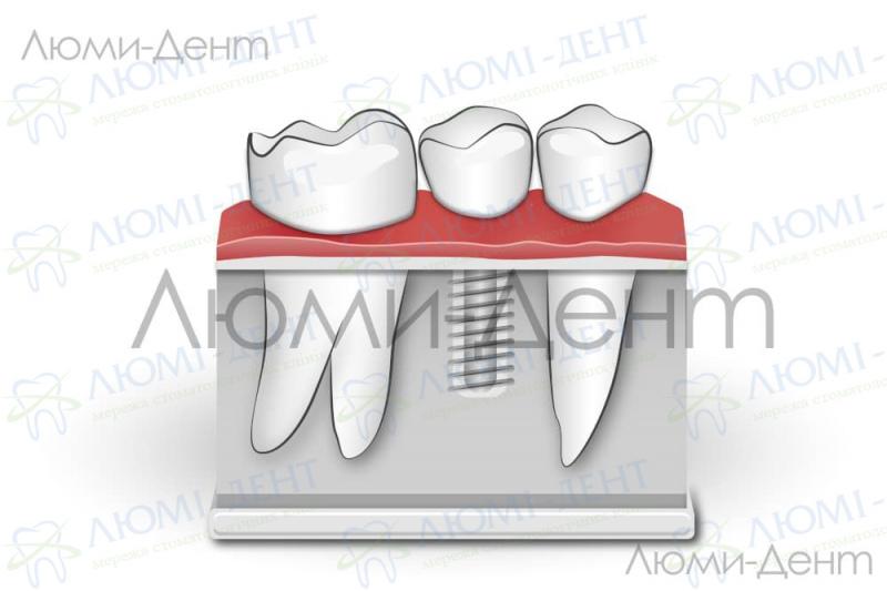 Импланты зубов виды цены Киев фото Люми-дент