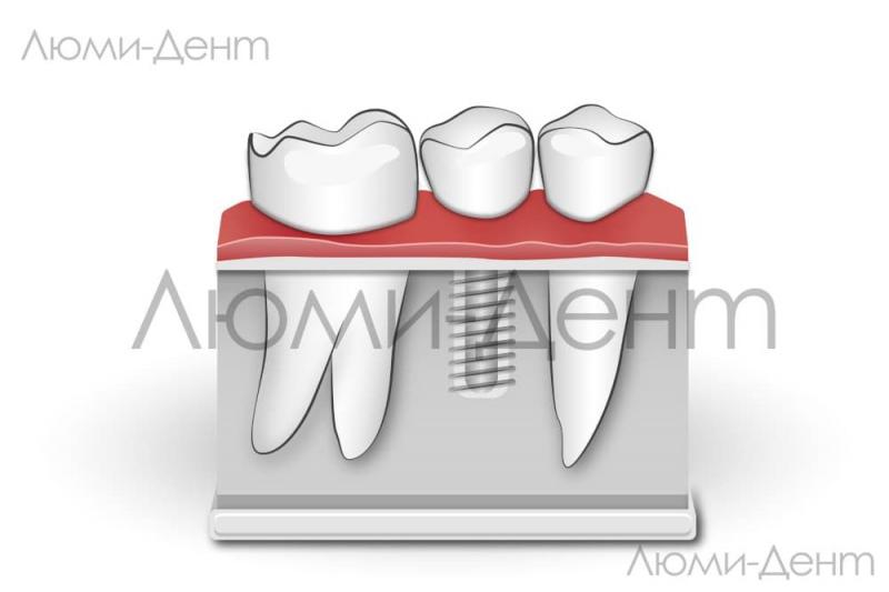 Одномоментная Базальная Имплантация зубов Киев Люми-Дент