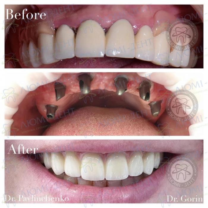 Імплантація зубів фото ЛюміДент