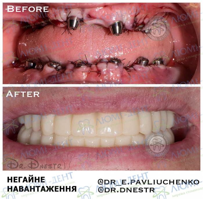 Вирвані всі зуби взагалі що робити вставити імпланти Люмі-Дент Київ