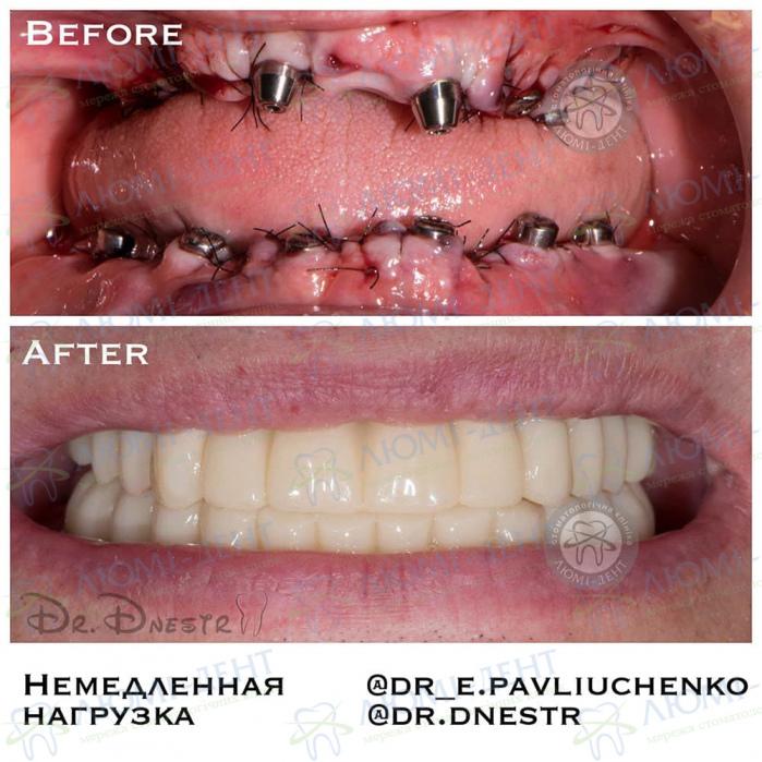 Вырваны все зубы вообще что делать вставить импланты Люми-Дент Киев