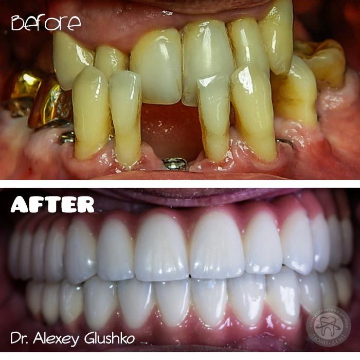 Як швидко приживаються імпланти зубів Люмі-Дент