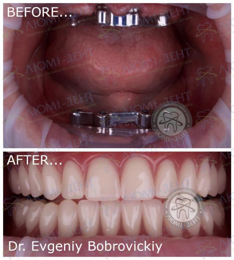 Відторгнення зубного імпланта фото Люмі-Дент