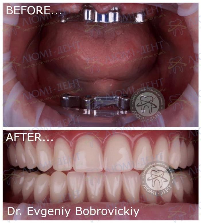 Полностью нет зубов вставить импланты Киев Люми-Дент фото