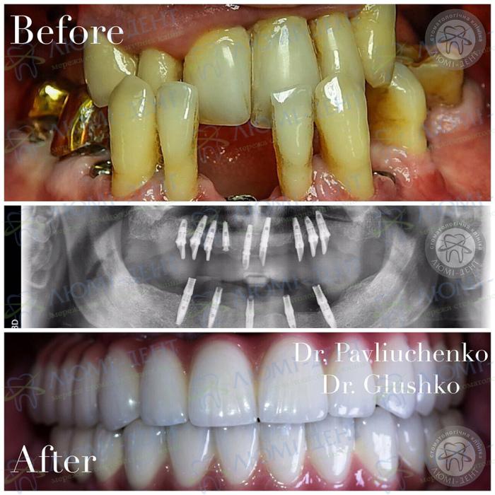 Нет всех зубов поставить импланты в Киеве Люми-Дент фото