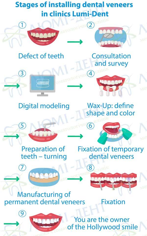 veneers on teeth photo Lumi-Dent