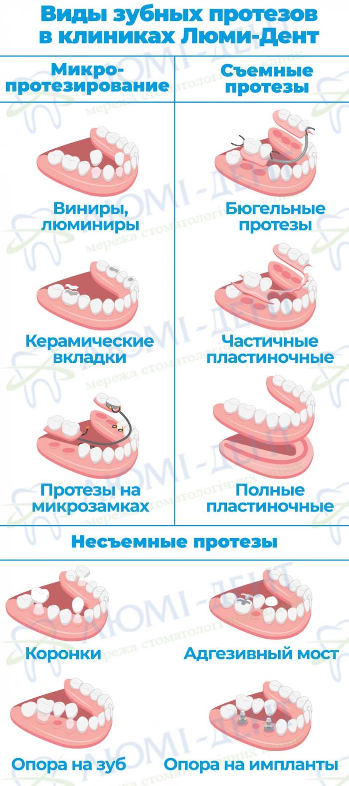 Протезирование зубов протезы фото Люми-Дент