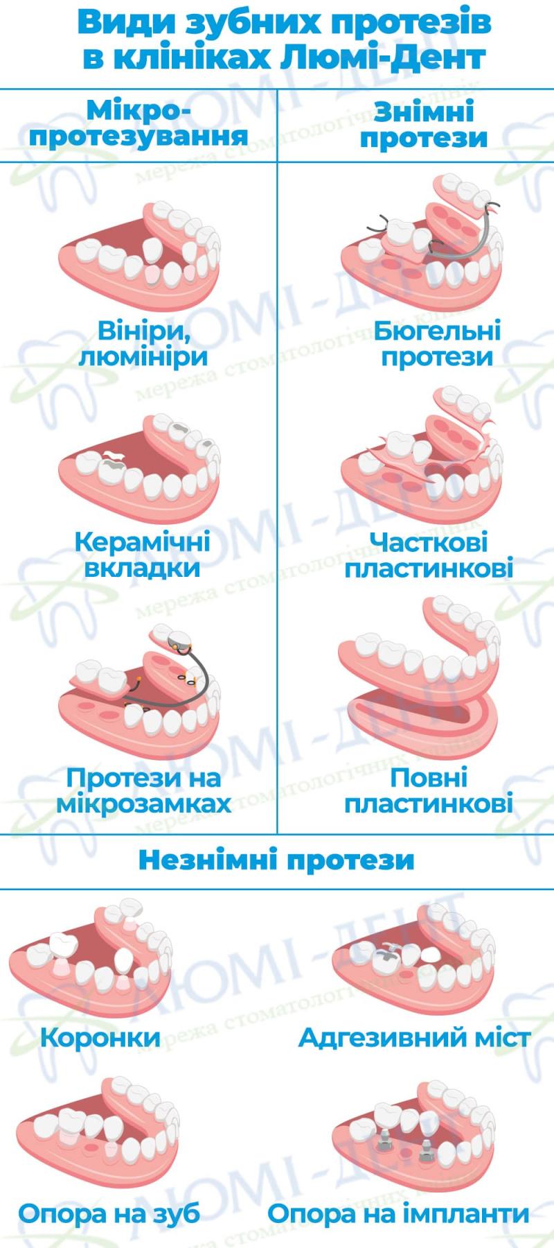 Зубні протези це фото ЛюміДент