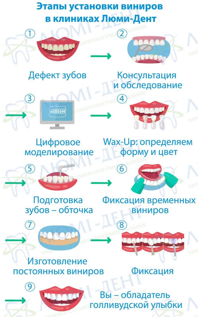 виниры на зубы фото Люми-Дент