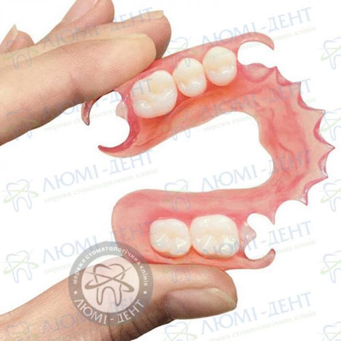 Нейлонові знімні зубні протези фото Люмі-Дент