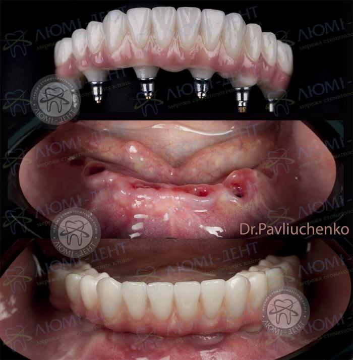 Как ставят импланты зубов фото Люми-Дент