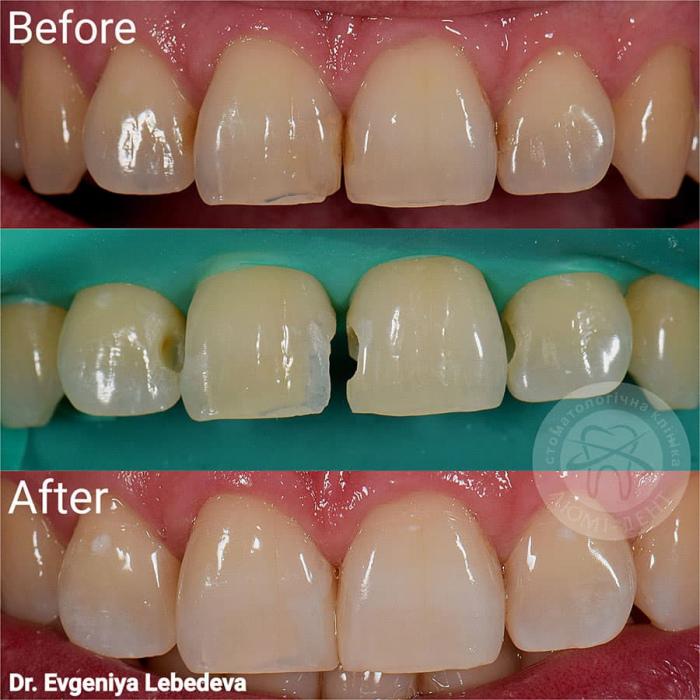 Нарощування зуб на зуб реставрація фото Люмідент