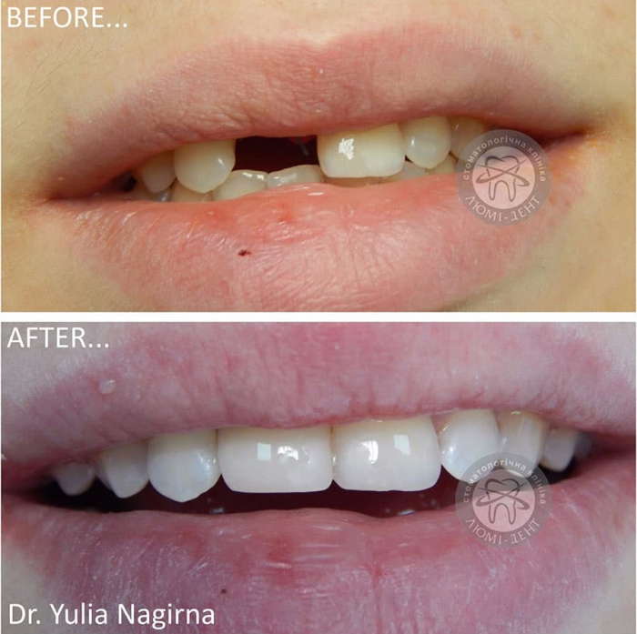 Нарощування зубів фото Люмі-Дент