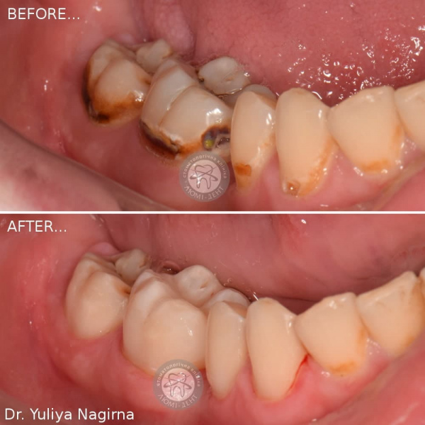 Зубная пломба фото по и после Люми-Дент