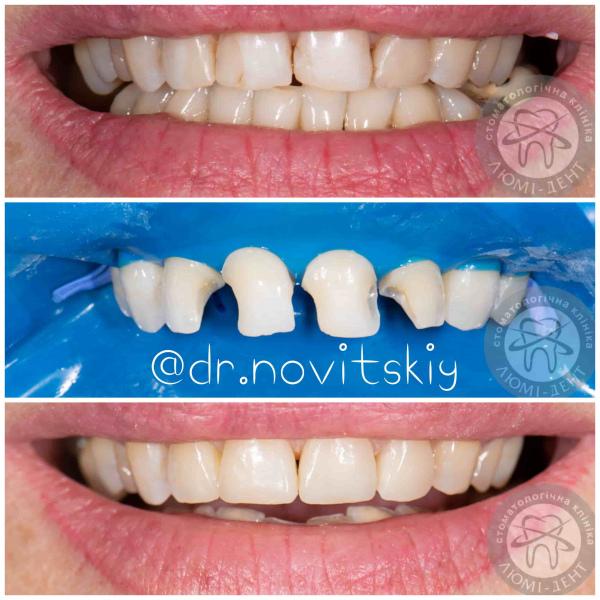 Зубная пломба на зуб фото Люми-Дент