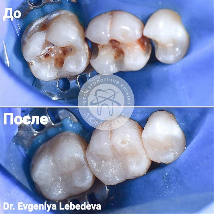 Відновлення зубів зубної емалі наростити фото Люмі-Дент