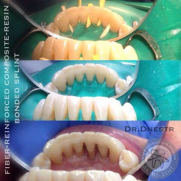 Шатаются передние зубы шинирование киев люмидент