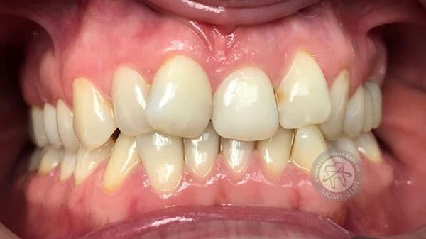 Види неправильного прикусу зубів фото Люмі-Дент Київ