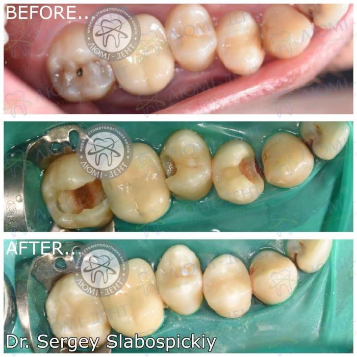 захворювання зубів фото ЛюміДент