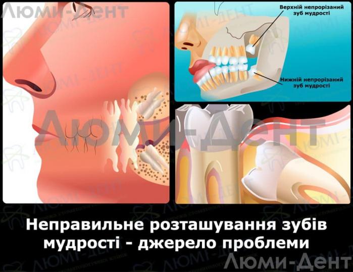 Видалення зубів мудрості фото ЛюміДент