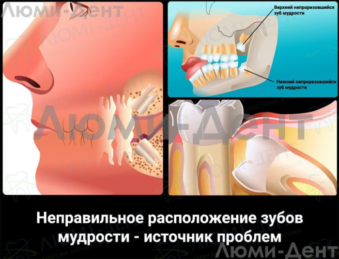 Удаление зубов мудрости фото ЛюмиДент