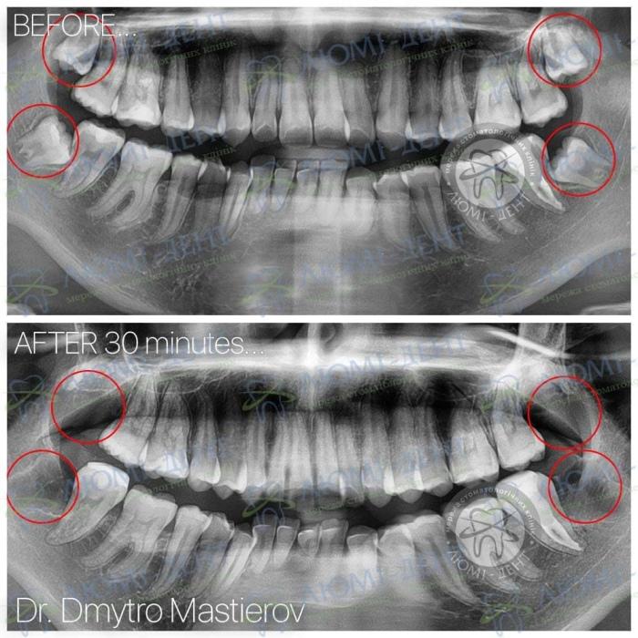 Зуб мудрості біль фото ЛюміДент