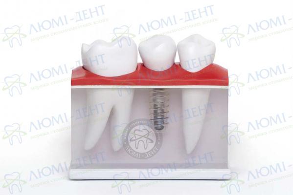 Зубний імплант не прижився фото Люмі-Дент Київ