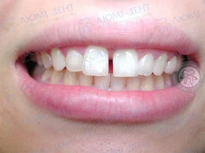 Диастема щель между зубами фото Люмидент