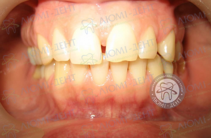 Диастема Щель между зубами у взрослых ЛюмиДент