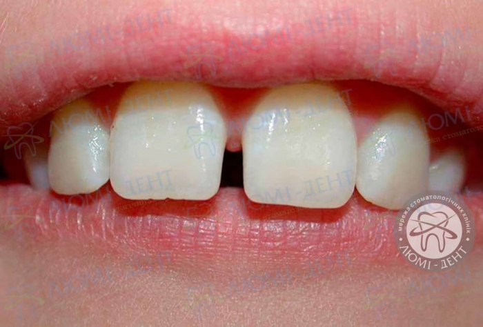 Диастема зубов у детей причины фото Люмидент