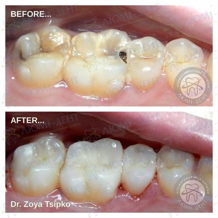 Дырка в зубе лечение фото ЛюмиДент