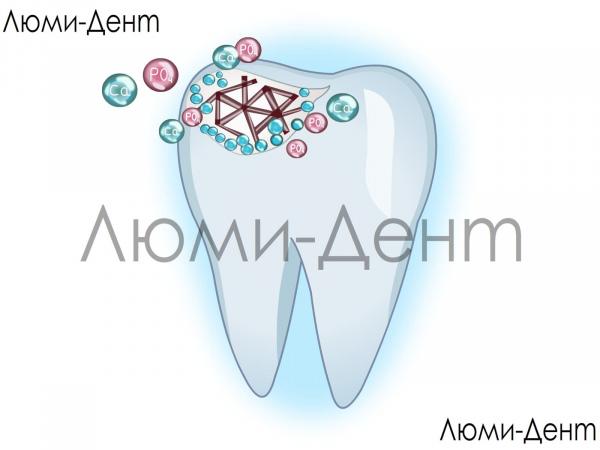 Зміцнення лікування імплантація емалі зубів Люмі-Дент